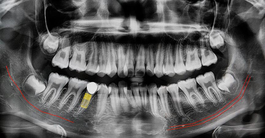 TAC Prima Della Chirurgia Orale