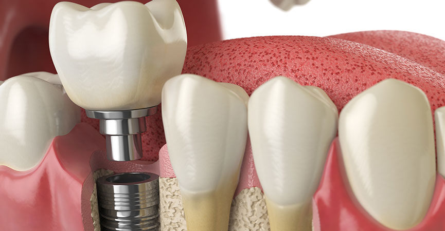 Impianti dentali in Albania - EndoDental