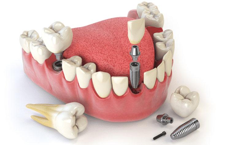 Implanti Dentali Servizi