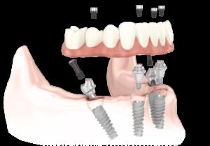 Quanto costa un impianto dentale