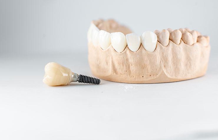 protetica dentale servizi