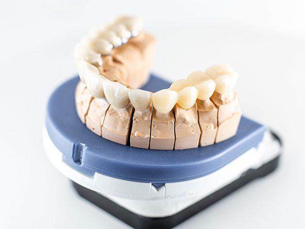 Protetica Dentale in Albania