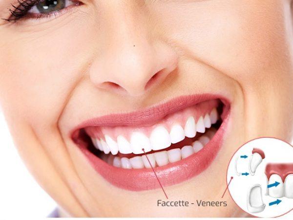 Faccette Dentali in Albania