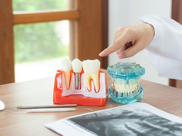 Impianti Dentali in Albania